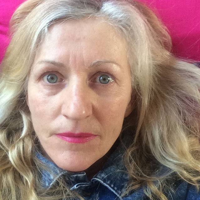 My life with the chronic fatigue syndrome